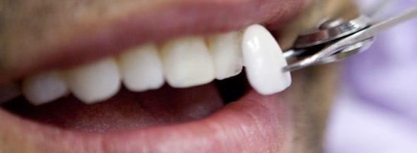 Restaurar su sonrisa con carillas de porcelana
