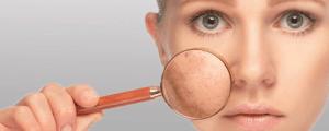 Cómo tratar la psoriasis en el cuero cabelludo