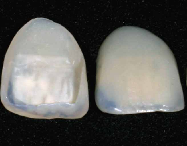 ¿Cómo las carillas dentales pueden mejorar su sonrisa?